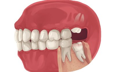 Are There Any Side Effects Of Removing Wisdom Teeth