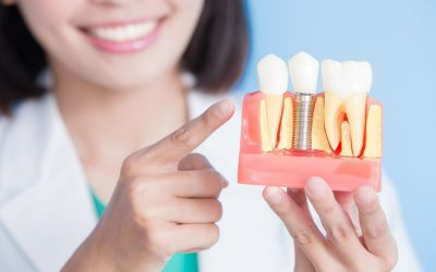 Protected: What is the Cost and Procedure for a Single Tooth Dental Implant?