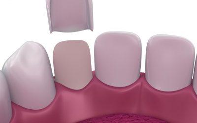 Do I Need To Straighten My Teeth Before Getting Veneers
