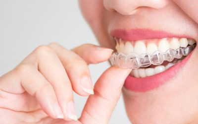 Invisalign VS Braces- Which One Is Better and Why?